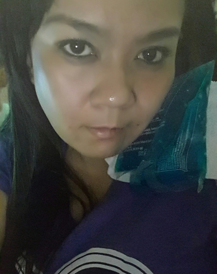 This is how I look like today. I do cold compress every 8 hours.